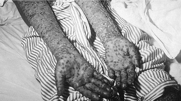 эпидемии в истории человечества (5)