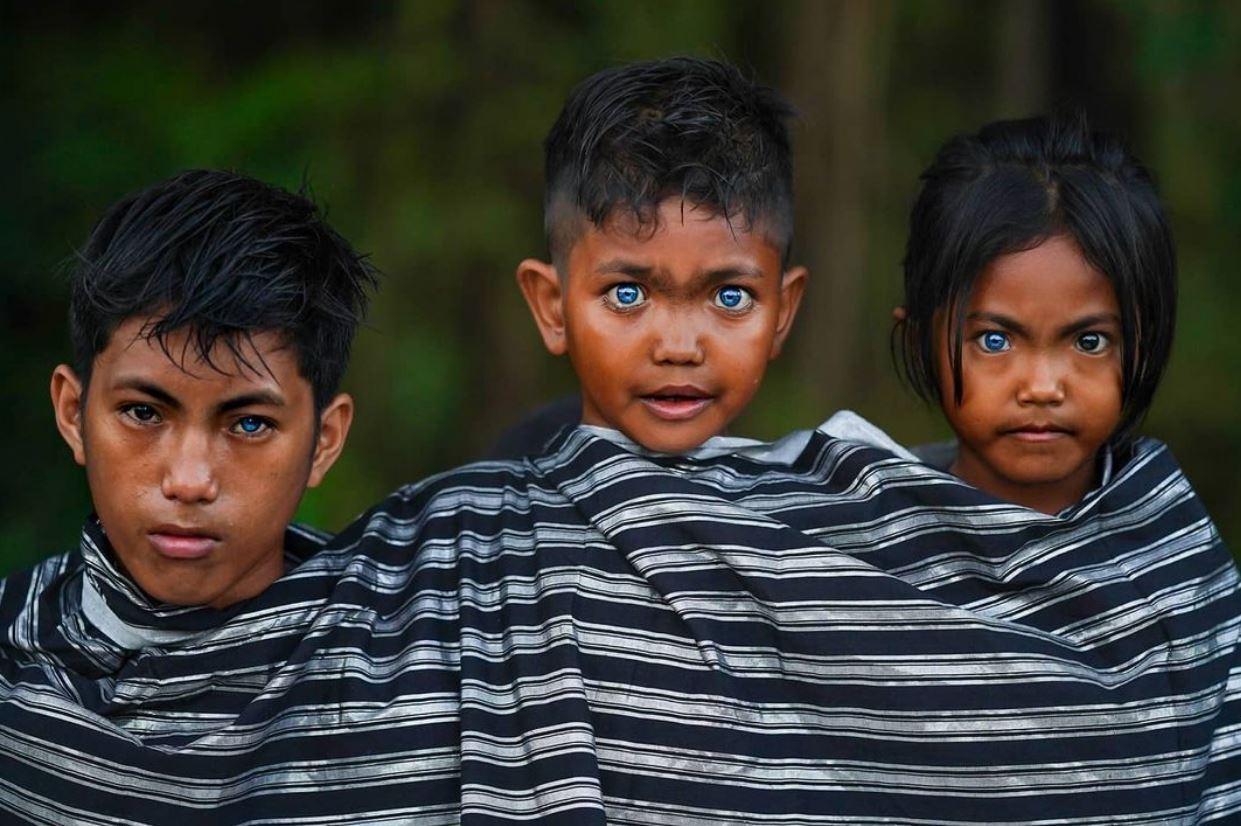 Голубые глаза у людей